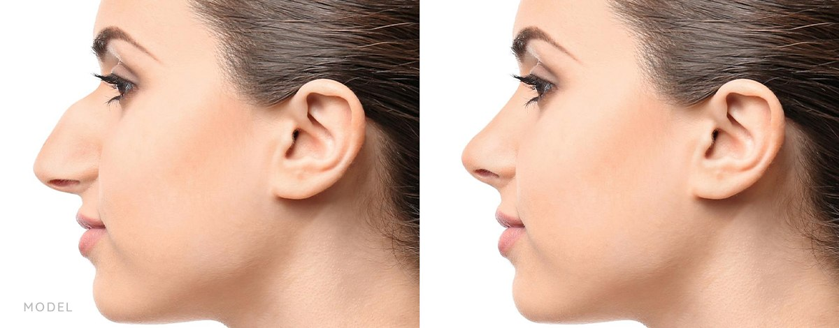 Rhinoplasty Model Before and After