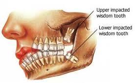 Facts About Wisdom Teeth M Timothy Gocke Dds