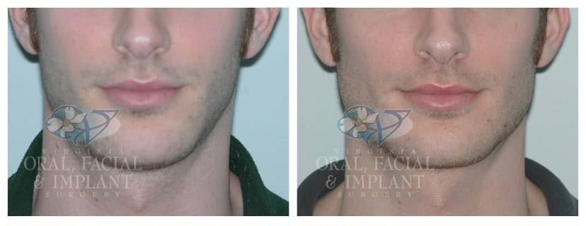 Patient 7a Jaw Implants Before and After