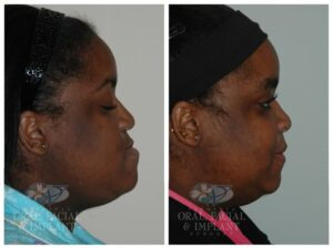 Patient 1b Jaw Surgery Before and After