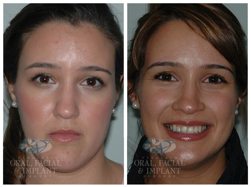 Patient 3a Jaw Surgery Before and After