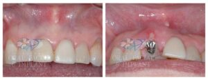Patient 10b Dental Implant and Temporary Crown Before and After