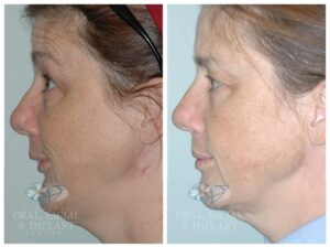 Patient 4a Facial Trauma Before and After