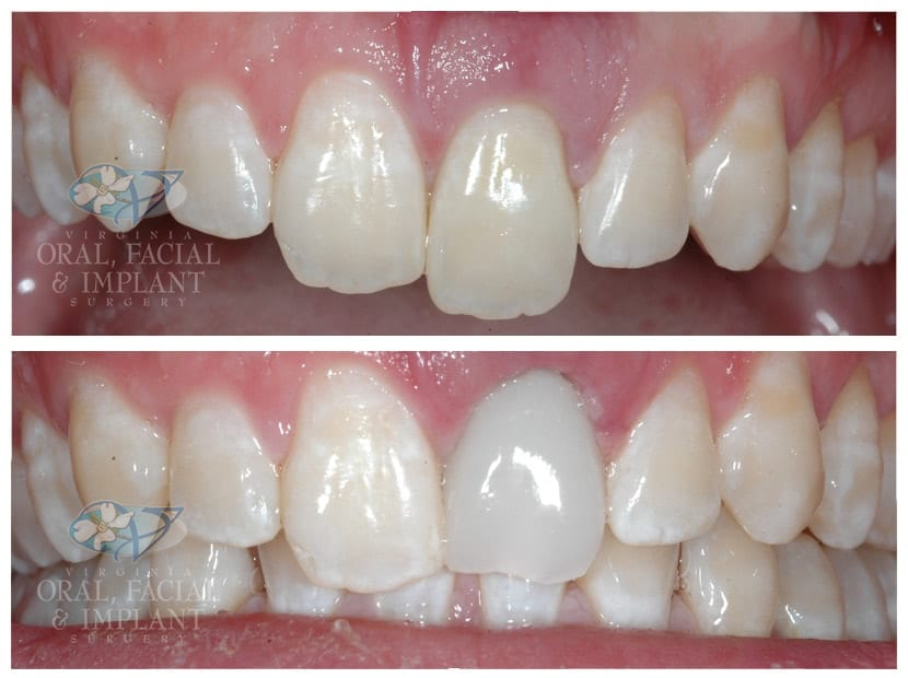 Patient 6 Immediate Dental Implant and Temp Crown Before and After