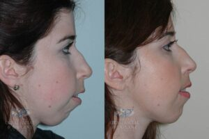 Patient 13b Frontal Orthognathic Surgery Before and After