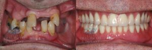 Patient 14b Dental Implant Overdenture Before and After