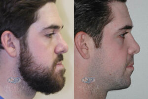 Patient 19c Orthognathic Surgery Before and After