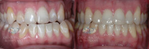 virginiaoralsurgery_dental_northernvirginia_beforeandafter_jawsurgery1a