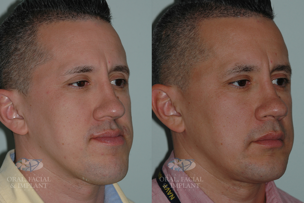 virginiaoralsurgery_dental_northernvirginia_beforeandafter_jawsurgery1b