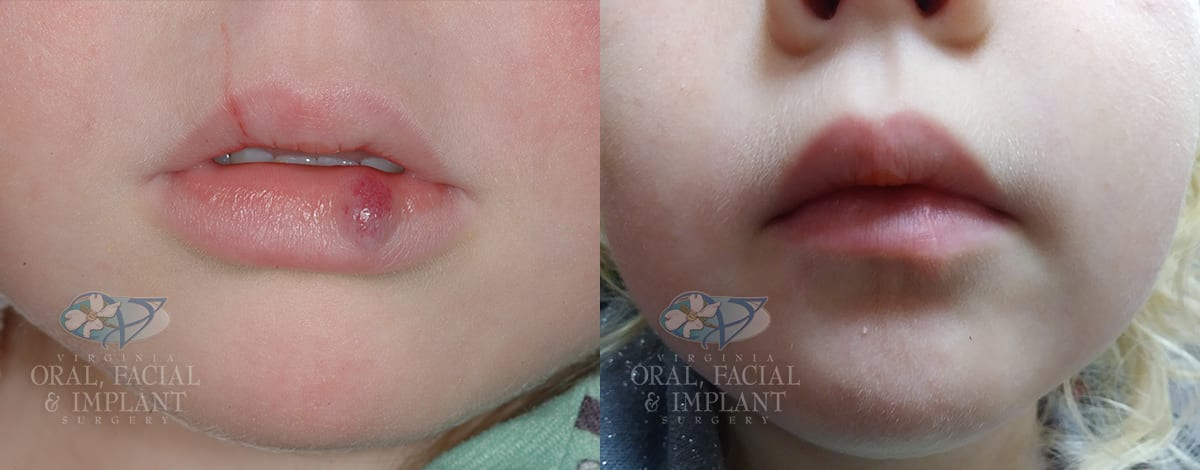 Patient 15 Pediatric Hemangioma Before and After
