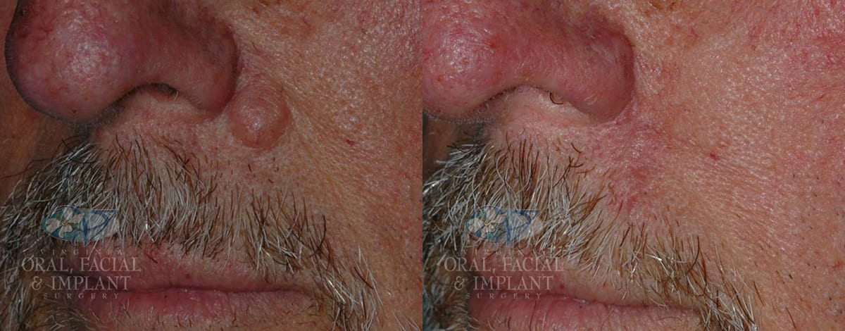 Patient 6 Benign Tumor Removal Before and After