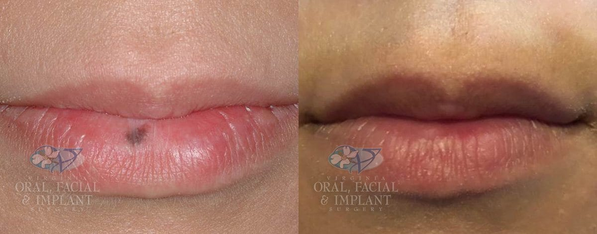 Patient 14 Lip Mole Removal Before and After