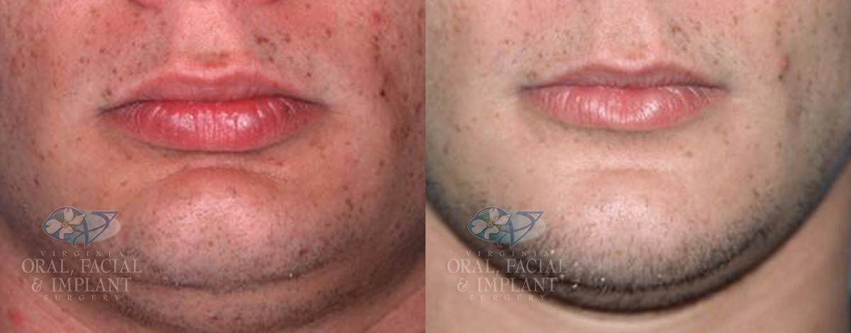 Patient 11 Genioplasty Before and After