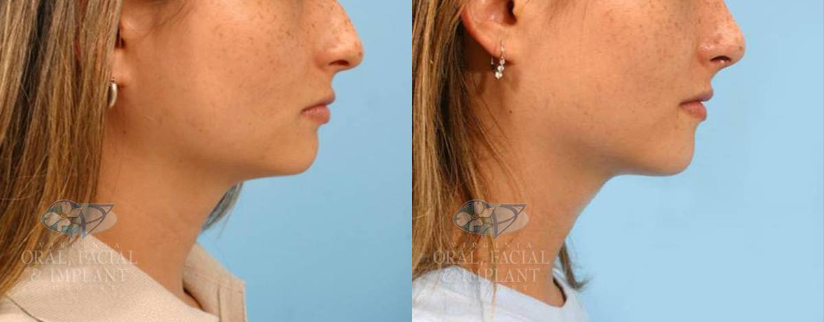 Patient 10 Genioplasty Before and After