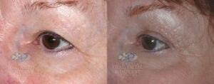 Patient 1.1 Blepharoplasty Before and After