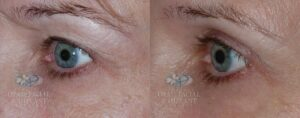 Patient 1.2 Blepharoplasty Before and After