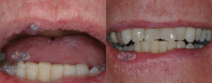 before and after image of venous lake on the upper lip