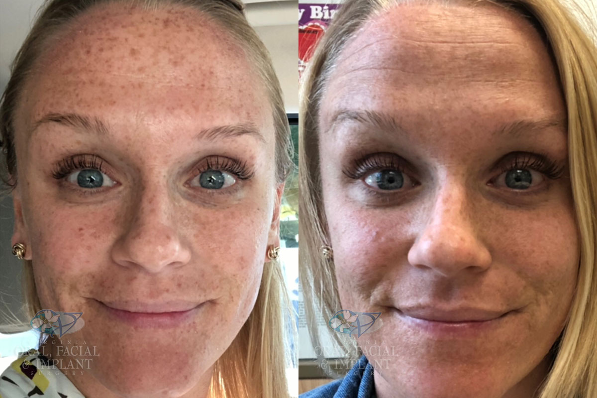 Patient 17 IPL Before and After