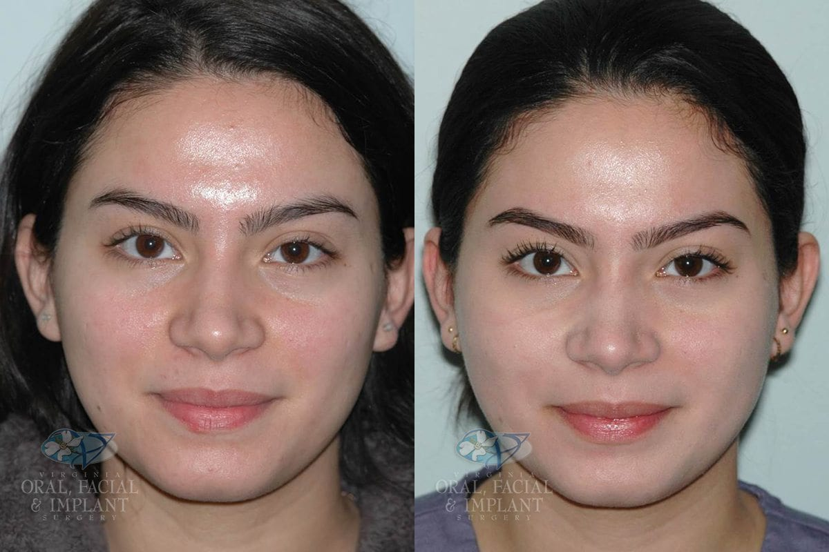 Patient 4 Laser Resurfacing Before and After