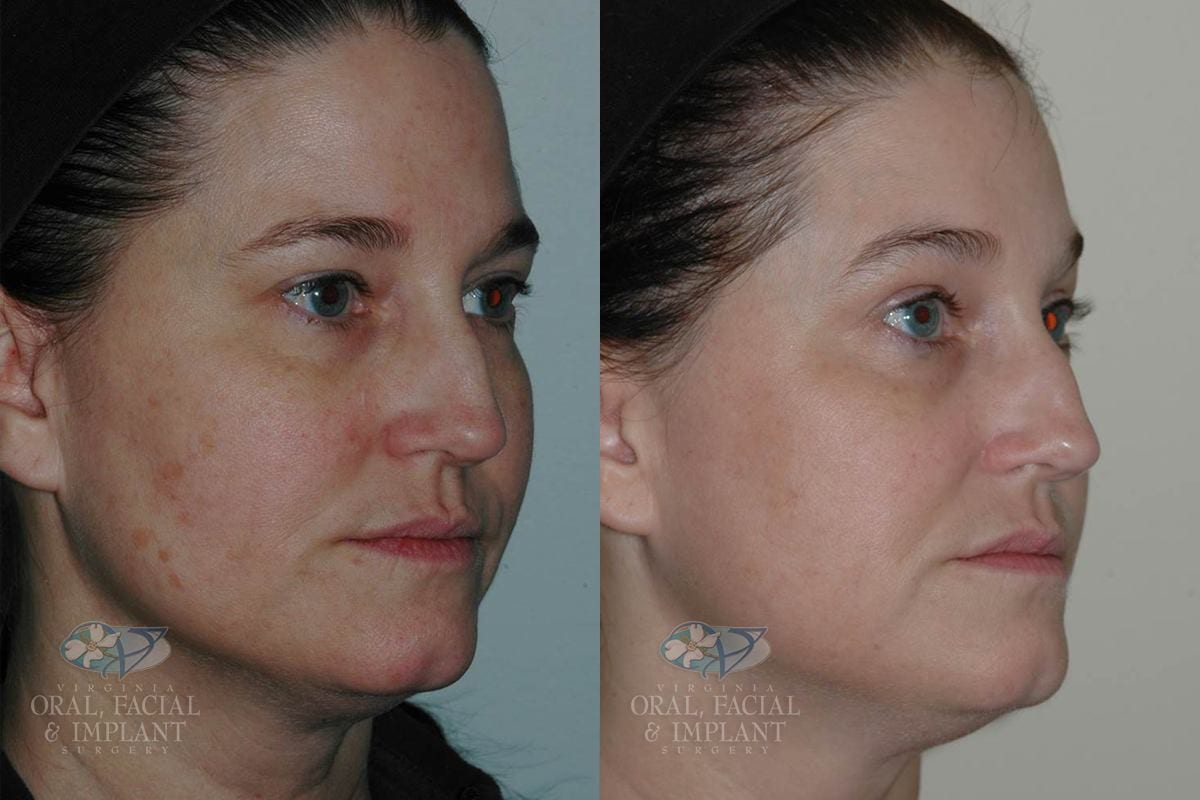 Patient 5 Laser Resurfacing Before and After