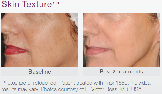 Skin Texture Before and After Treatment